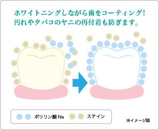 ホワイトニングしながら歯をコーティング